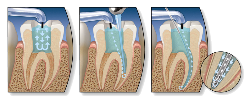Endodonzia-pagina